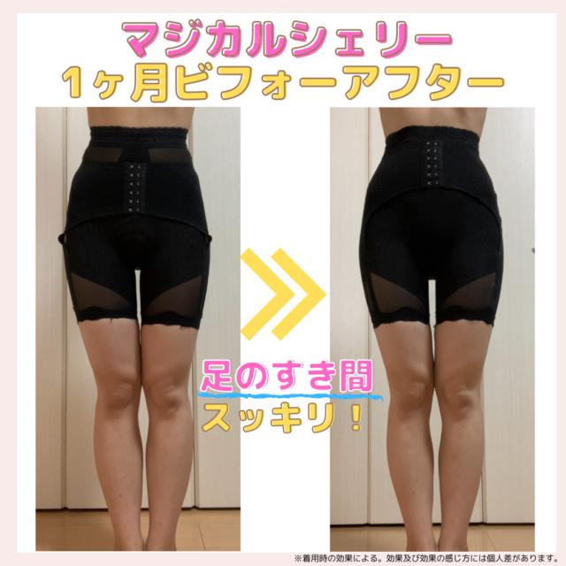 マジカルシェリー着用初日の脚(着用時)と1ヶ月後の脚(着用時)の比較
