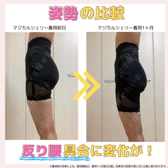 マジカルシェリー着用1ヶ月の比較(姿勢)